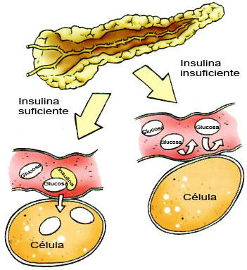 Diabetes Mellitus : ¿QUE ES LA DIABETES MELLITUS?