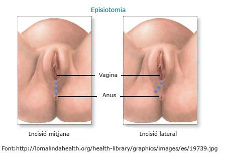 Imatge d'una episiotomia. Web Infermera Virtual