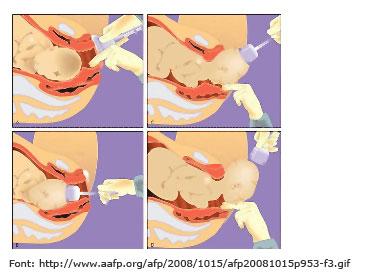 Imatge d'extracció de nadó amb ventosa.