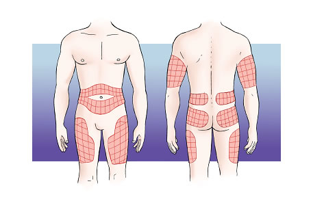 zones d'injecció: part superior braços, part anterior i lateral cuixes, part superior natges, abdomen